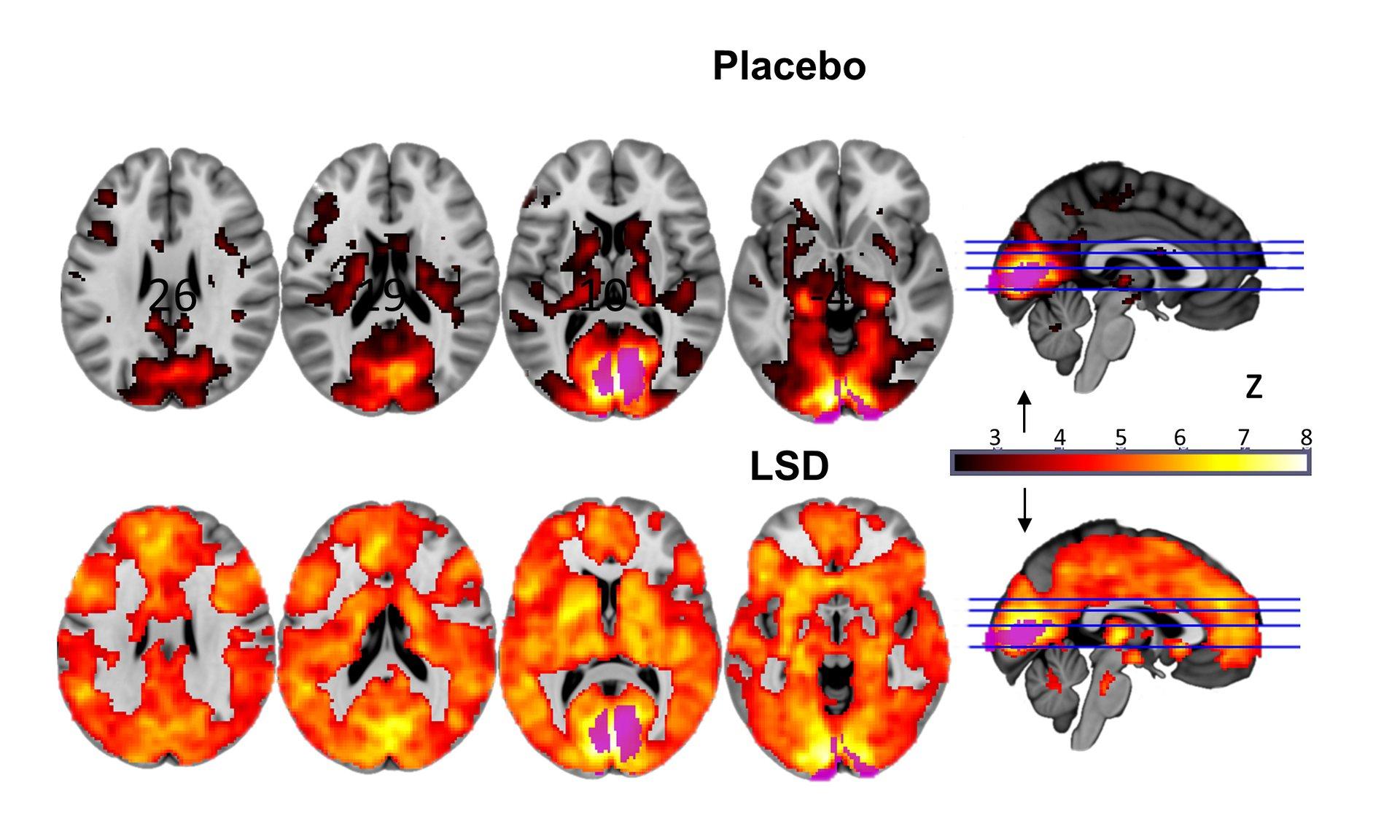 Brain-on-LSD